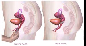 vaginalring